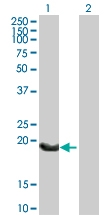 H00003512-B01P - Immunoglobulin J chain