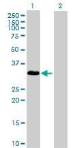 H00003552-D01P - Interleukin-1 alpha / IL-1A