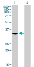 H00003553-B01P - Interleukin-1 beta / IL-1B