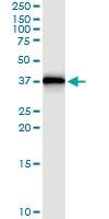 H00003553-D01 - Interleukin-1 beta / IL-1B