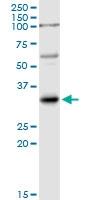 H00003553-D01P - Interleukin-1 beta / IL-1B