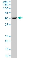 H00003611-M01 - Integrin-linked protein kinase
