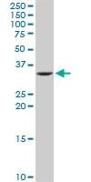 H00003612-D01P - Inositol monophosphatase / IMPA1