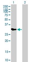 H00003613-B01P - Inositol monophosphatase 2 / IMPA2