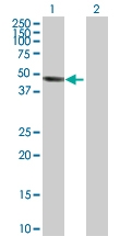 H00003632-D01P - INPP5A / 5PTase