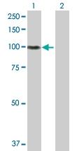 H00003693-D01P - Integrin beta-5 / ITGB5