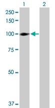 H00003694-D01P - Integrin beta-6 / ITGB6