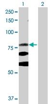 H00003696-D01P - Integrin beta-8 / ITGB8