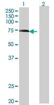 H00003702-B01 - Tyrosine-protein kinase ITK/TSK