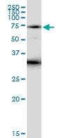H00003702-D01 - Tyrosine-protein kinase ITK/TSK