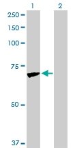 H00003728-D01P - Junction plakoglobin