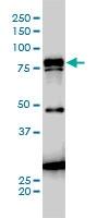 H00003728-M01 - Junction plakoglobin