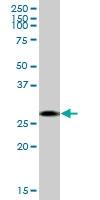 H00003795-B01 - Ketohexokinase