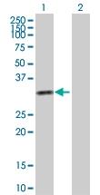 H00003795-D01P - Ketohexokinase