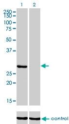 H00003795-M01 - Ketohexokinase