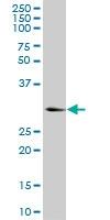 H00003795-M03 - Ketohexokinase
