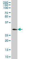 H00003795-M07 - Ketohexokinase
