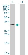 H00003816-B01P - KLK1 / Kallikrein-1