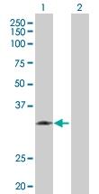 H00003816-D01P - KLK1 / Kallikrein-1