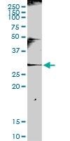 H00003821-D01P - KLRC1 / CD159a