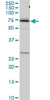H00003827-D01P - Kininogen-1