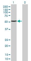 H00003851-D01P - Cytokeratin 4