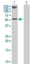 H00003852-D01P - Cytokeratin 5