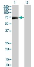 H00003852-M08 - Cytokeratin 5