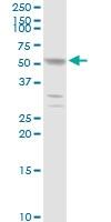 H00003855-D01P - Cytokeratin 7