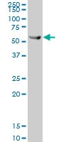 H00003856-A01 - Cytokeratin 8