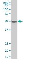 H00003856-B01P - Cytokeratin 8