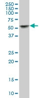 H00003856-B02 - Cytokeratin 8