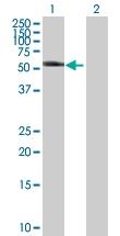 H00003856-B02P - Cytokeratin 8