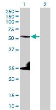 H00003856-D01P - Cytokeratin 8