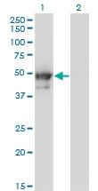 H00003856-M02 - Cytokeratin 8