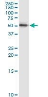 H00003866-D01 - Cytokeratin 15