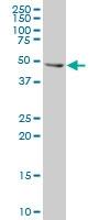 H00003868-A01 - Cytokeratin 16