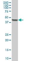 H00003875-B01 - Cytokeratin 18