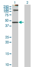 H00003875-D01P - Cytokeratin 18