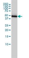 H00003875-M01 - Cytokeratin 18