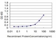 H00003875-M03 - Cytokeratin 18
