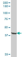 H00003880-B01P - Cytokeratin 19