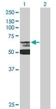 H00003930-B01P - Lamin-B receptor