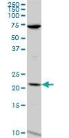 H00003933-A01 - Lipocalin-1