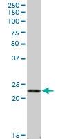 H00003934-B01P - Lipocalin-2