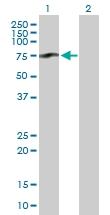 H00003959-B01P - Galectin-3-binding protein