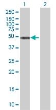 H00003992-B01 - Fatty acid desaturase 1 (FADS1)
