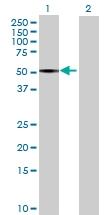 H00003992-B02 - Fatty acid desaturase 1 (FADS1)