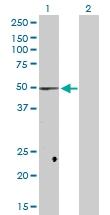 H00003992-D03P - Fatty acid desaturase 1 (FADS1)