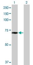H00004023-D01P - Lipoprotein lipase